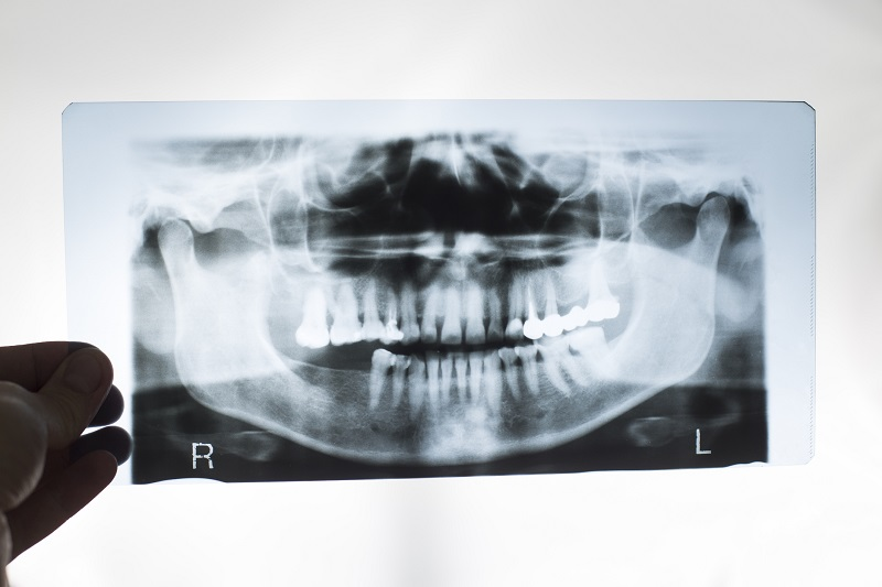 rentgen w diagnostyce stomatologicznej
